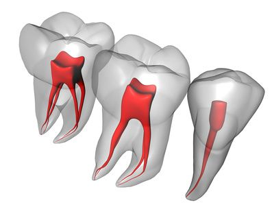 Ενδοδοντία - Δόντια Εσωτερικά