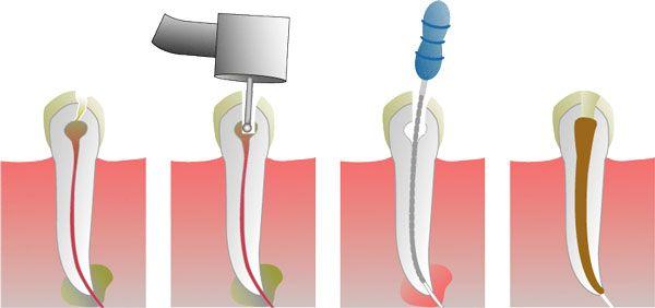 Τι είναι απονεύρωση δοντιού;